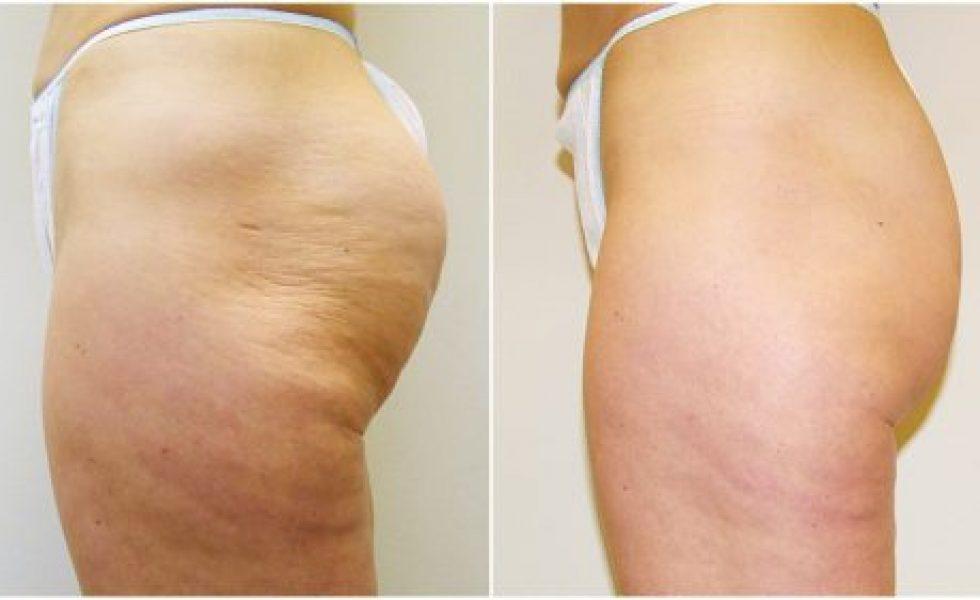 After Velashape Butt Cellulite Reduction Treatment