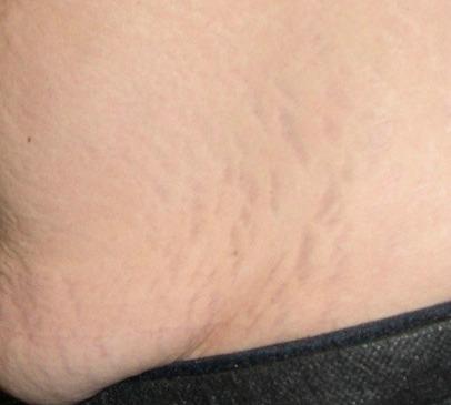 stretch mark removal