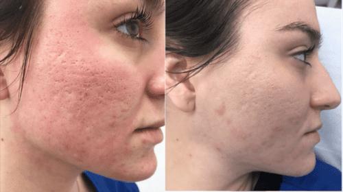 Dermapen acne scar treatment