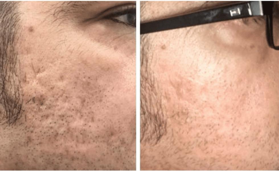 4 Icon Acne Scar treatments