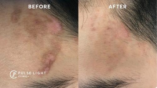 Melasma PicoSure laser treatments