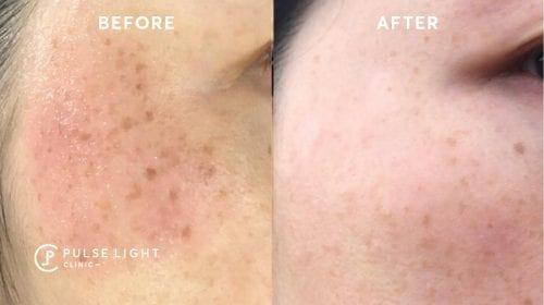 Melasma pigmentation picosure treatment