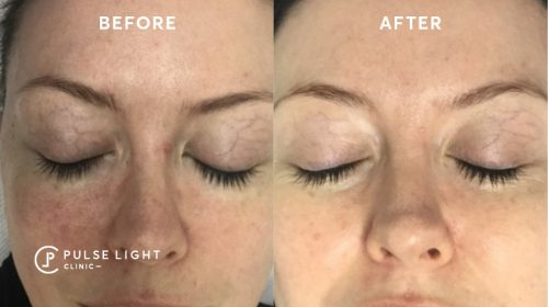 Rosacea Facial Before and After