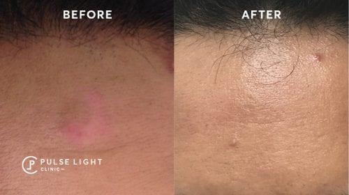 Melasma Pigmentation Laser Treatment
