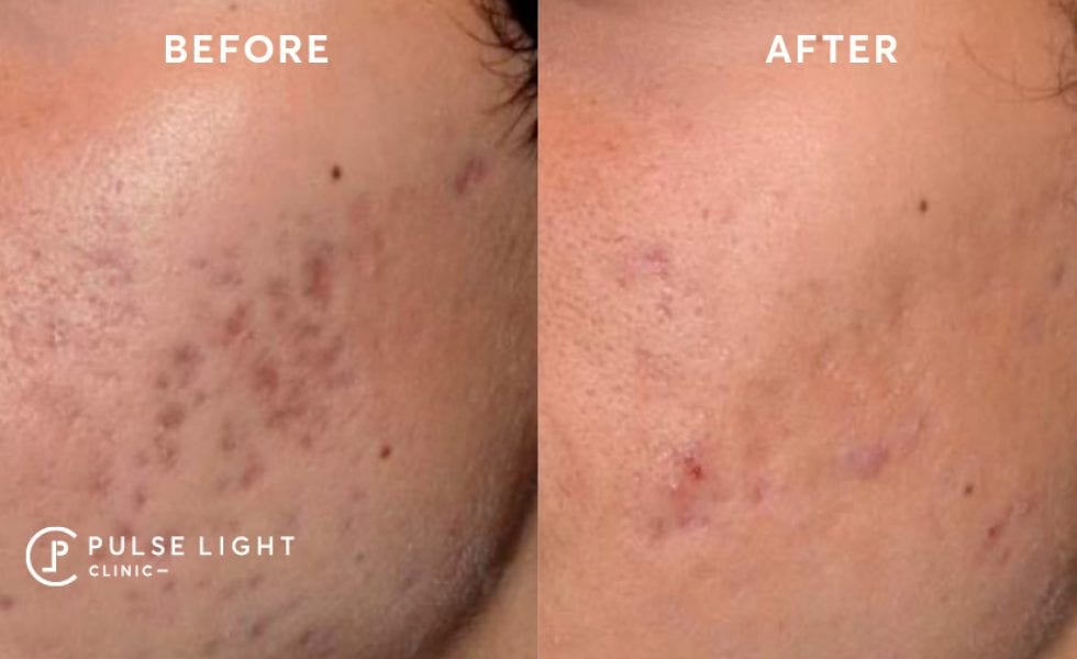 Man before and after using Icon to resolve acne scars