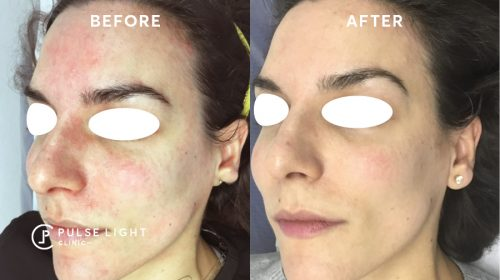 After 1 Rosacea Skin Before and After
