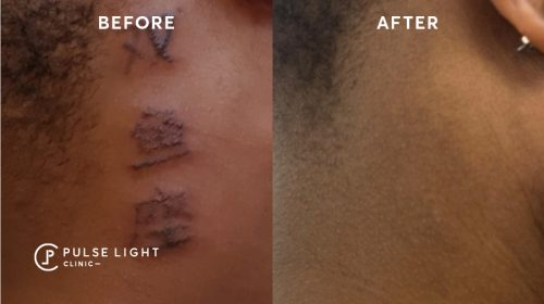 Laser tattoo removal before and after on dark skin model