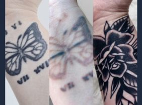 Tattoo Removal cover up before and afters