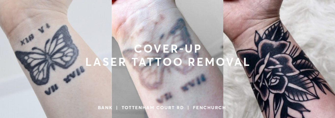 Tattoo removal before and after cover up before and after