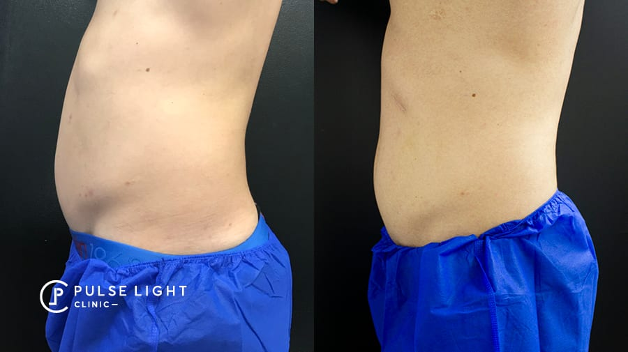 Before and After CoolSculpting side view on lady's stomach