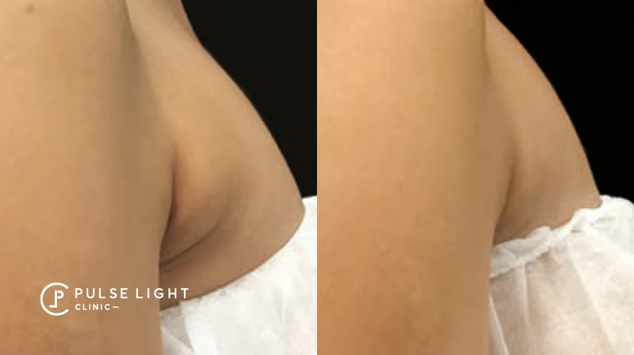 Before and after fat removal on lady's bra fat