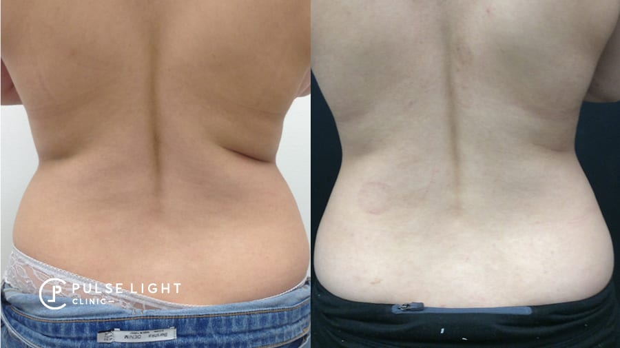 Before and after receiving CoolSculpting on the back area of a client at Pulse Light Clinic
