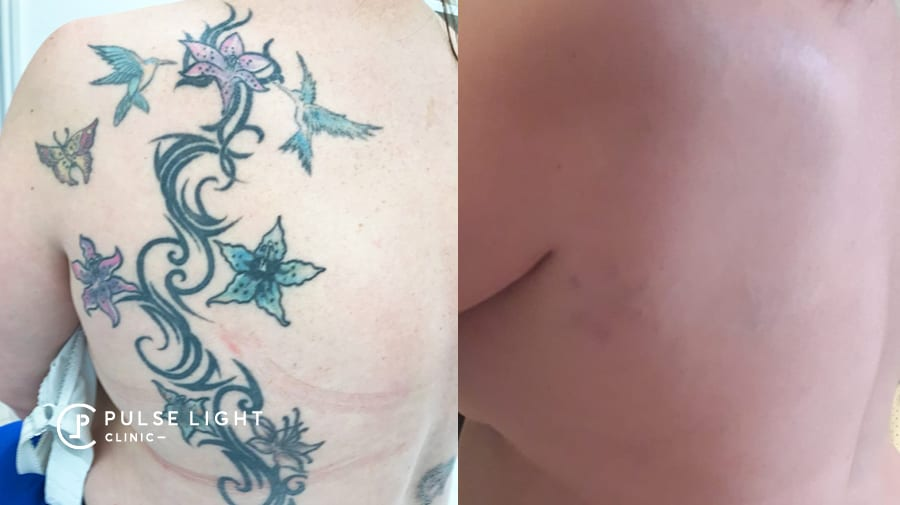 Before and after green tattoo on lady's back