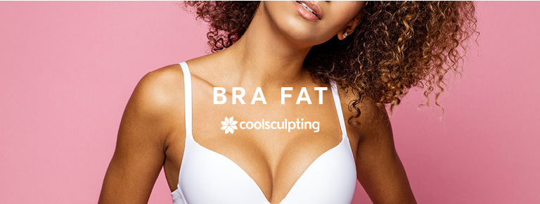 A lady in her bra, showing bra fat for Coolsculpting