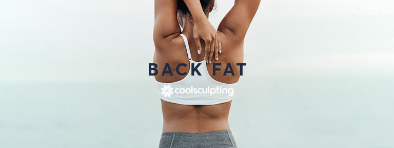 A lady stretching to her back fat area for CoolSculpting