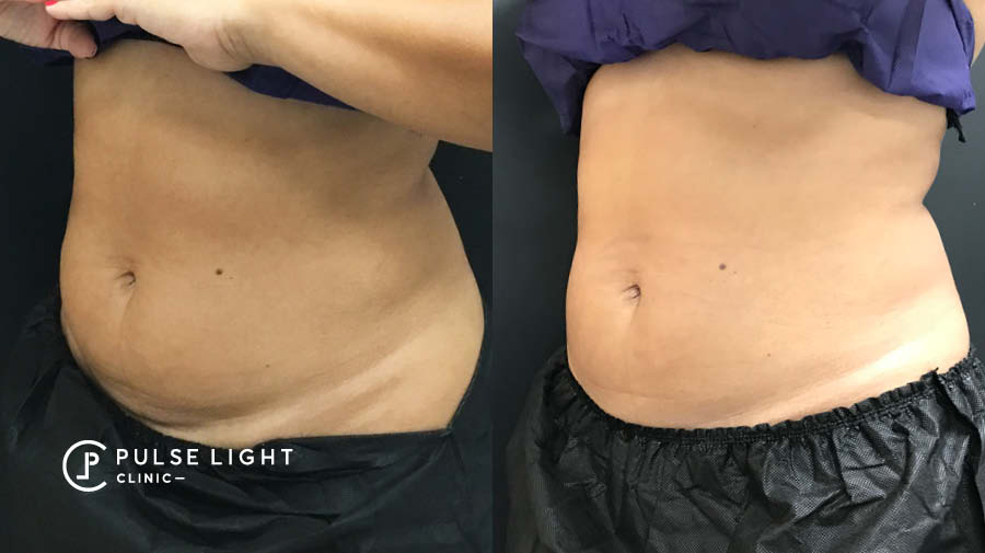CoolSculpting abdomen female before and after side picture