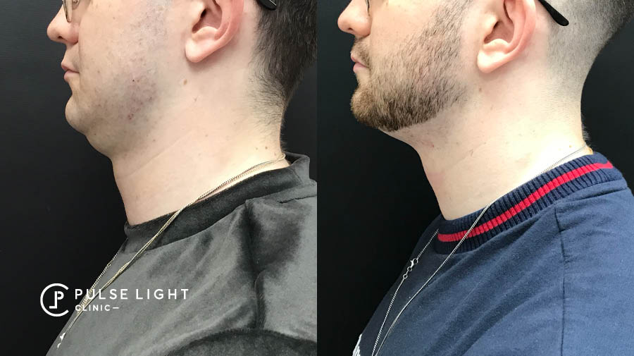 Before and After CoolSculpting Man