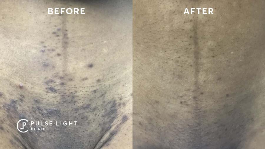 Laser Hair removal ingrown hair navel