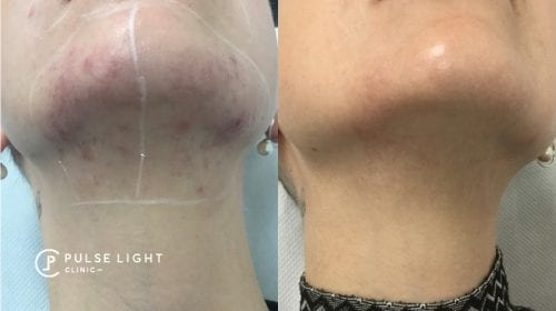 Lady's neck with before and after of laser hair removal - reduction in pigmentation