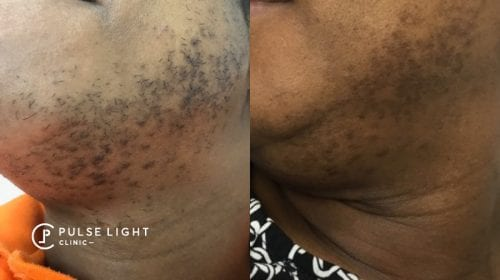 A side view of lady's facial hair showing results after laser hair removal, reduction in hairs and ingrown hairs.