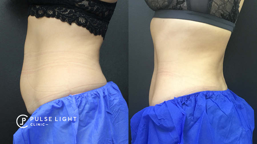 Fat freezing abdomen before and after results