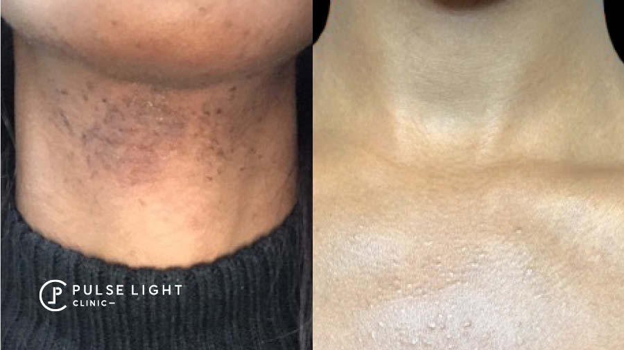 PCOS Neck Laser Hair Removal