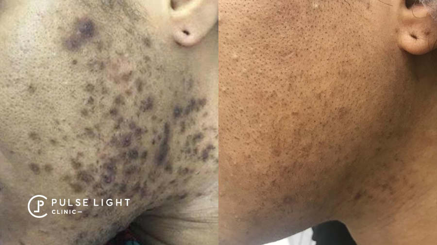 PCOS Laser Hair Removal Face