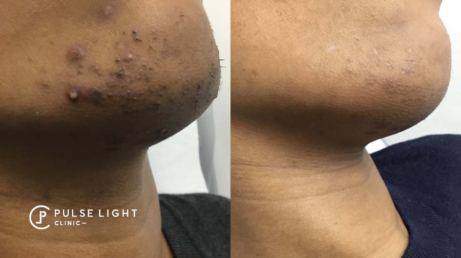 PCOS Chin Ingrown Laser Hair Removal (Male)