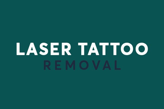 Laser Tattoo removal offers