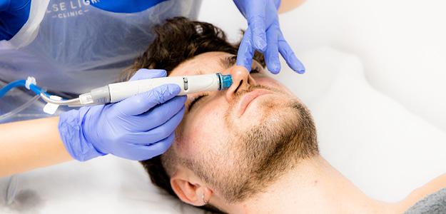 Male Hydrafacial treatment