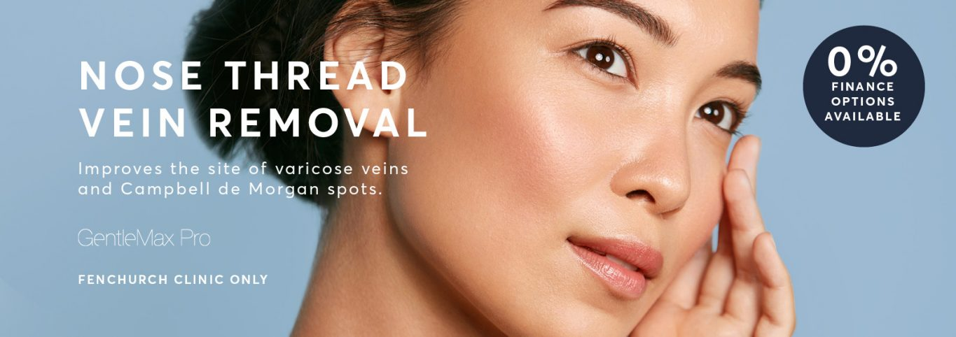 Nose vein removal london