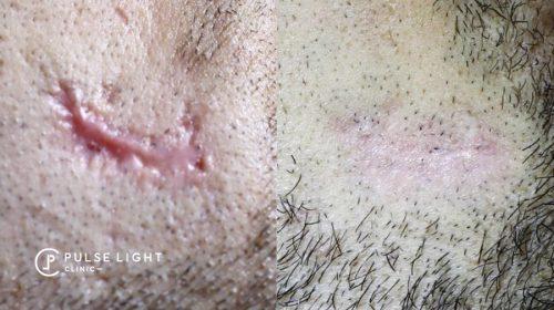 post traumatic scar CO2 laser