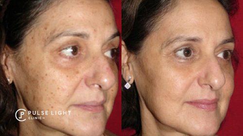 age spots CO2 laser