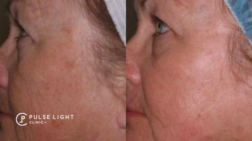 eye wrinkles CO2 treatment