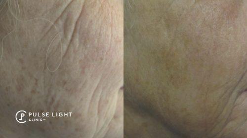 deep wrinkles face CO2 laser